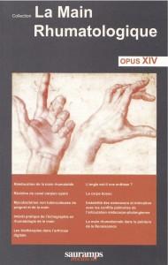 opus XIV main rhumato